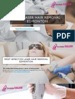 Best Laser Hair Removal Edmonton
