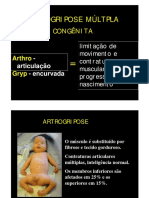 Artrogripose Doutor Sizinio Kanan Hebert (1)
