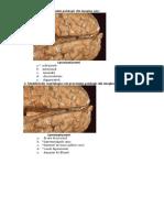 16.Patologia-sistemului-nervos-central-1 (1)6415135896253004264.docx