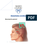 Aneurisma Cerebral (Mayo Clinic)