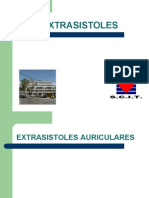 EXTRASISTOLIA AURICULAR