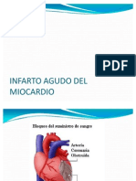 Infarto Agudo Del Miocardio Power Point