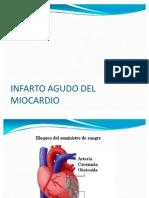 Infarto Agudo Del Miocardio Power Point
