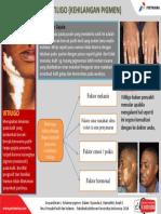 Vitiligo.pptx