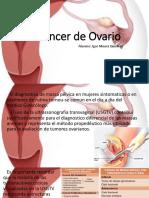 Cáncer de Ovario.pptx