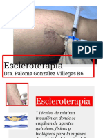 4.1. escleroterapia