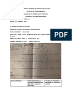 ALEJANDRA MUGLSA INFORME EKG