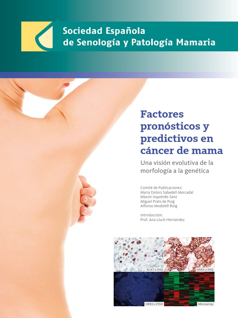cancer mamar g3