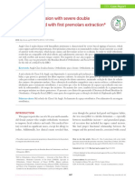 Class I malocclusion with severe double.pdf