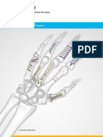 Acumed-Surgical-Technique-ES-Hand-Fracture-System-ESHNW10-07-B