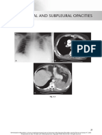 chest radio 3 pleural and subpleural opacities