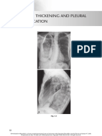 chest radio 5 pleural thickening and pleural calcification