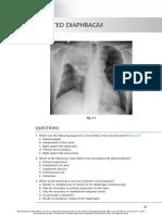 chest radio 6 elevated diaphragm