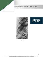 chest radio 17 diffuse fine nodular opacities