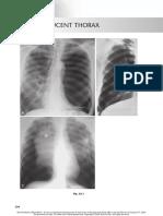 chest radio 22 hyperlucent thorax