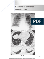 chest radio 19 coarse reticular opacities