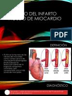 1 Manejo del infarto agudo de miocardio