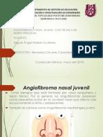 angiofibromacon tecnica de weber