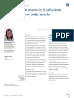 Recidiva en ortodoncia- apiñamiento anteroinferior postratamiento
