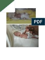 Testimonios de prematuros.docx