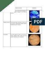Procedimiento, Resultados, Discusión de resultados- Practica nº 3
