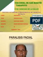 paralisisfacial-exposicin-111116025223-phpapp02