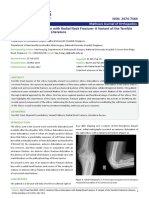 anterior-elbow-dislocation-with-radial-neck-fracture-a-variant-of-the-terrible-triad-and-a-review-of-the-literature