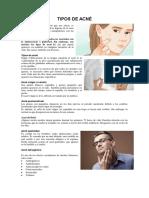 TIPOS DE ACNÉ.docx