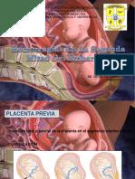 4 HEMORRAGIAS DE LA SEGUNDA MITAD DE GESTACION.pptx
