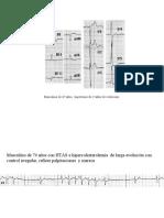 Electrocardiogram As