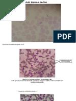 Atlas final de Hematología..pptx