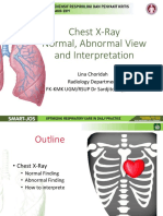 1. Chest X Ray Normal, Abnormal Views, and Interpretation