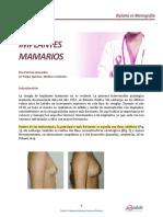 M6ACT2LOB01_implantes_mamarios