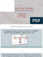 choriocarcinoma 11.pptx