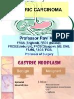 gastric_carcinoma.ppt