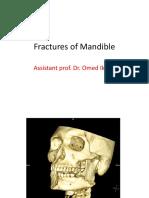 mandibular fractures.pptx