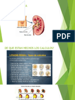 Litiasis-uréter