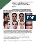 Cirurgia Ortognática_ a Solução Para as Desproporções e Assimetrias Dos Maxilares - Saúde e Medicina - SAPO Lifestyle