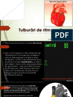 Tulburari-de-ritm-cardiac