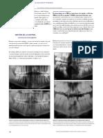 dx y tx de lesiones de celulas gigantes mx (arrastrado)