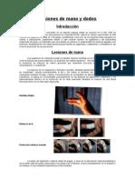 Lesiones de Mano y Dedos