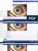 Uworld Step 1 2019 Ophthalmology & ENT.pdf