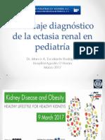 ectasia-renal-en-pediatría-Marzo-2017