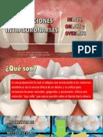 PREPARACIONES-INTRACORONARIAS (1).pptx