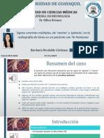Caso clínico (Signos en TB)