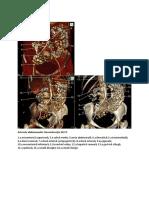 Arterele-abdomenului-3D