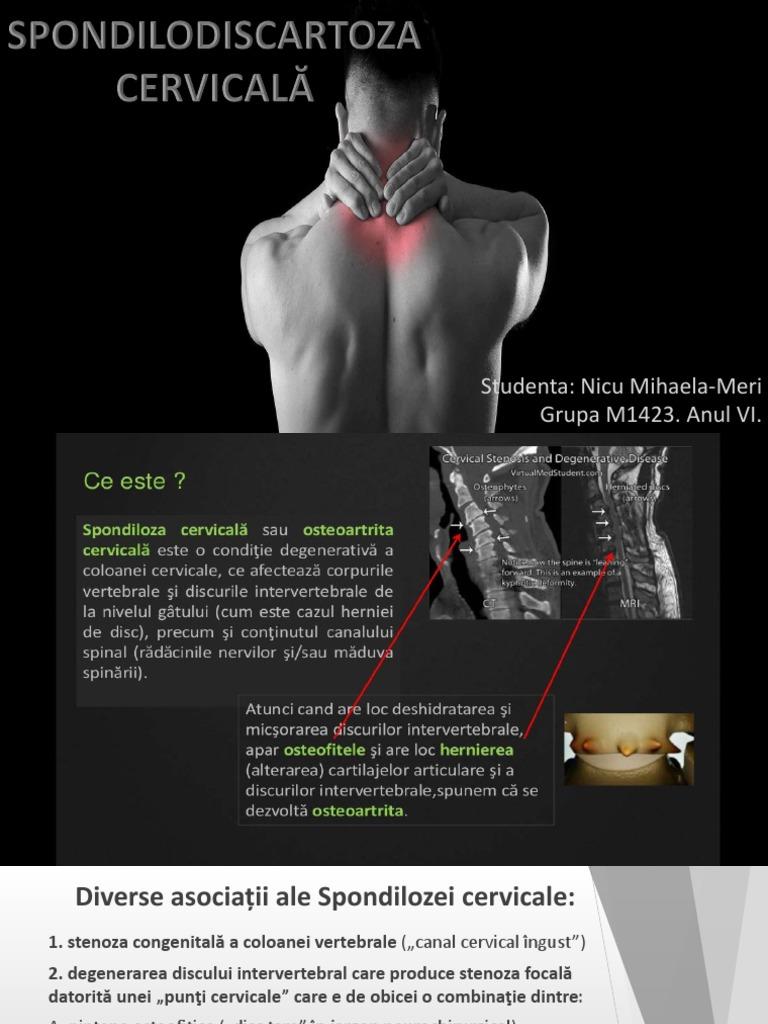 vitamine pentru restabilirea cartilajului în discul intervertebral