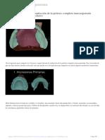 Decálogo-del-proceso-de-confección-de-la-prótesis-completa-mucosoportada-(Dr.Salvador-Gallardo-Colchero)