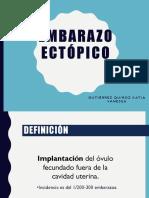 2.-Embarazo-Ectópico.ppt