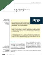 Neurorretinopatia macular aguda